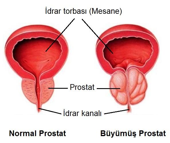 büyümüş prostat